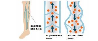 lechenie-sosudov-v-izraile