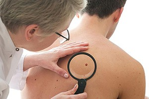 Лечение заболеваний кожи в Израиле