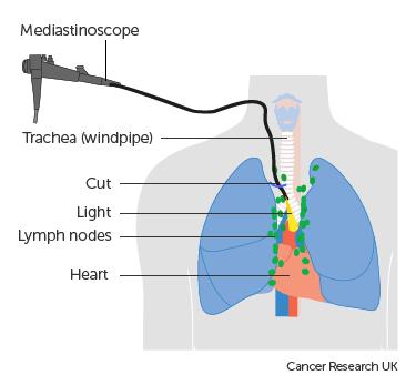 Медиастиноскопия