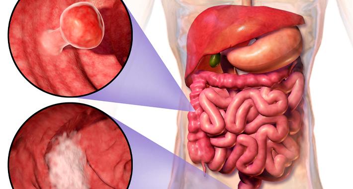 Симптомы полипа кишечника