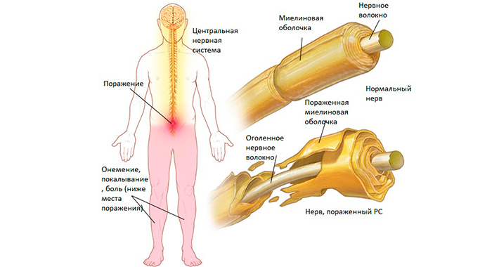 Факторы риска рассеянного склероза